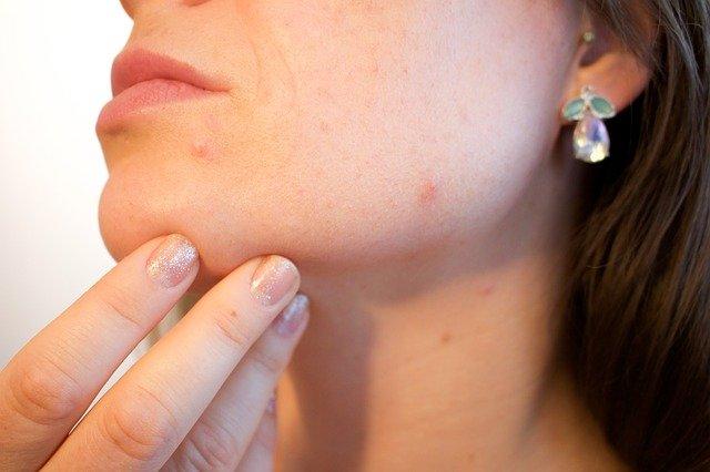 akné na obličeji